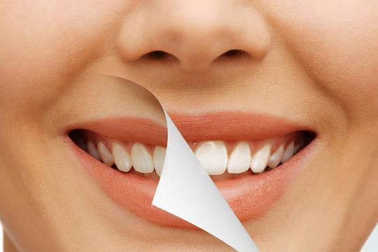 Beljenje zuba folijama